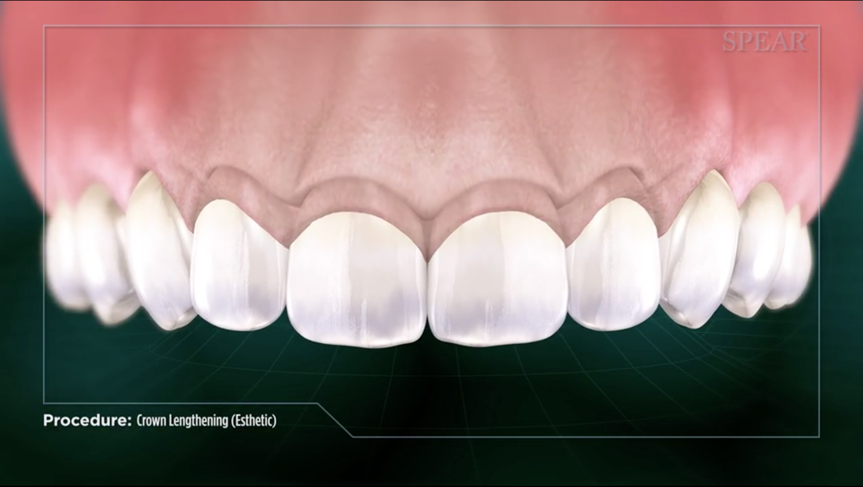 Clinical Crown Lengthening Chapel Hill Periodontics